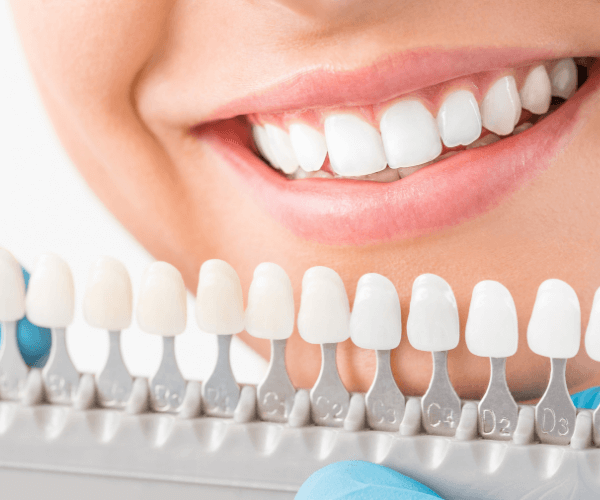 Teeth whitening smile