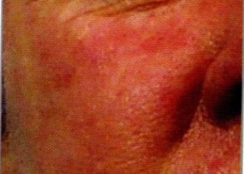 Dermapen before 3